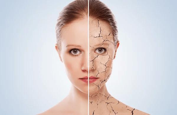 Vì sao da bị đen xạm?